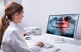 Dentist looking at digital dental x-rays