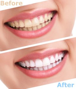 Teeth whitening results from cosmetic dentist in Bedford.